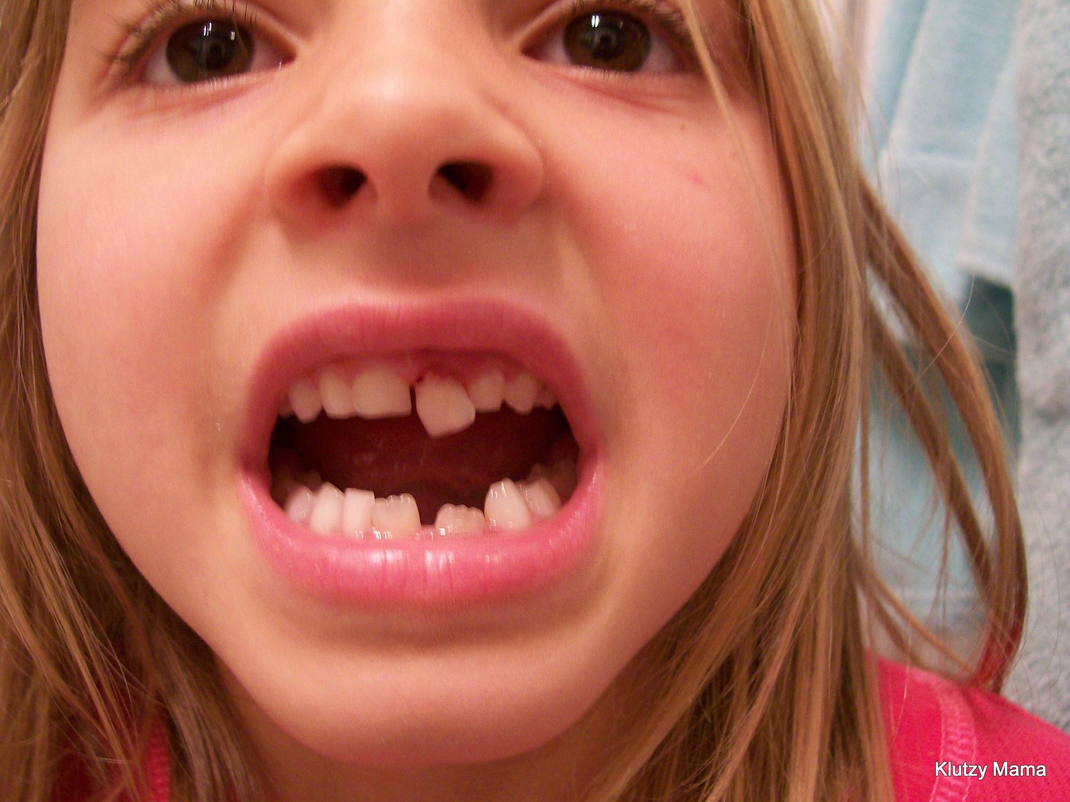 Как вырвать зуб без боли в домашних условиях у детей